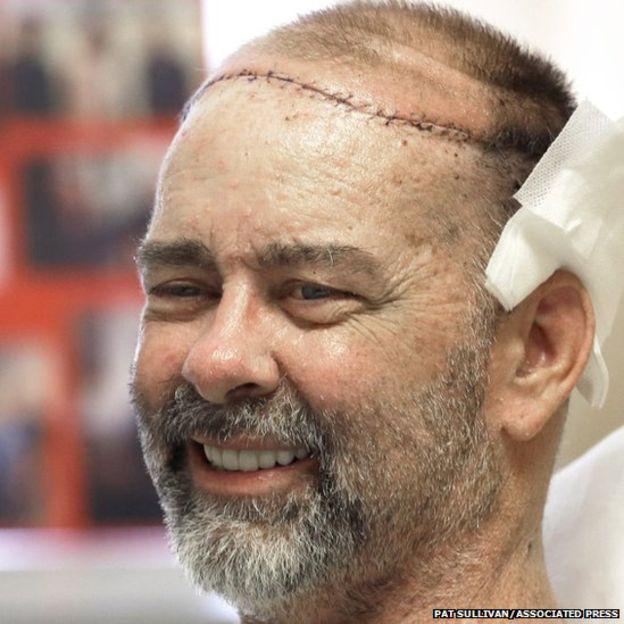 Facial first transplant world